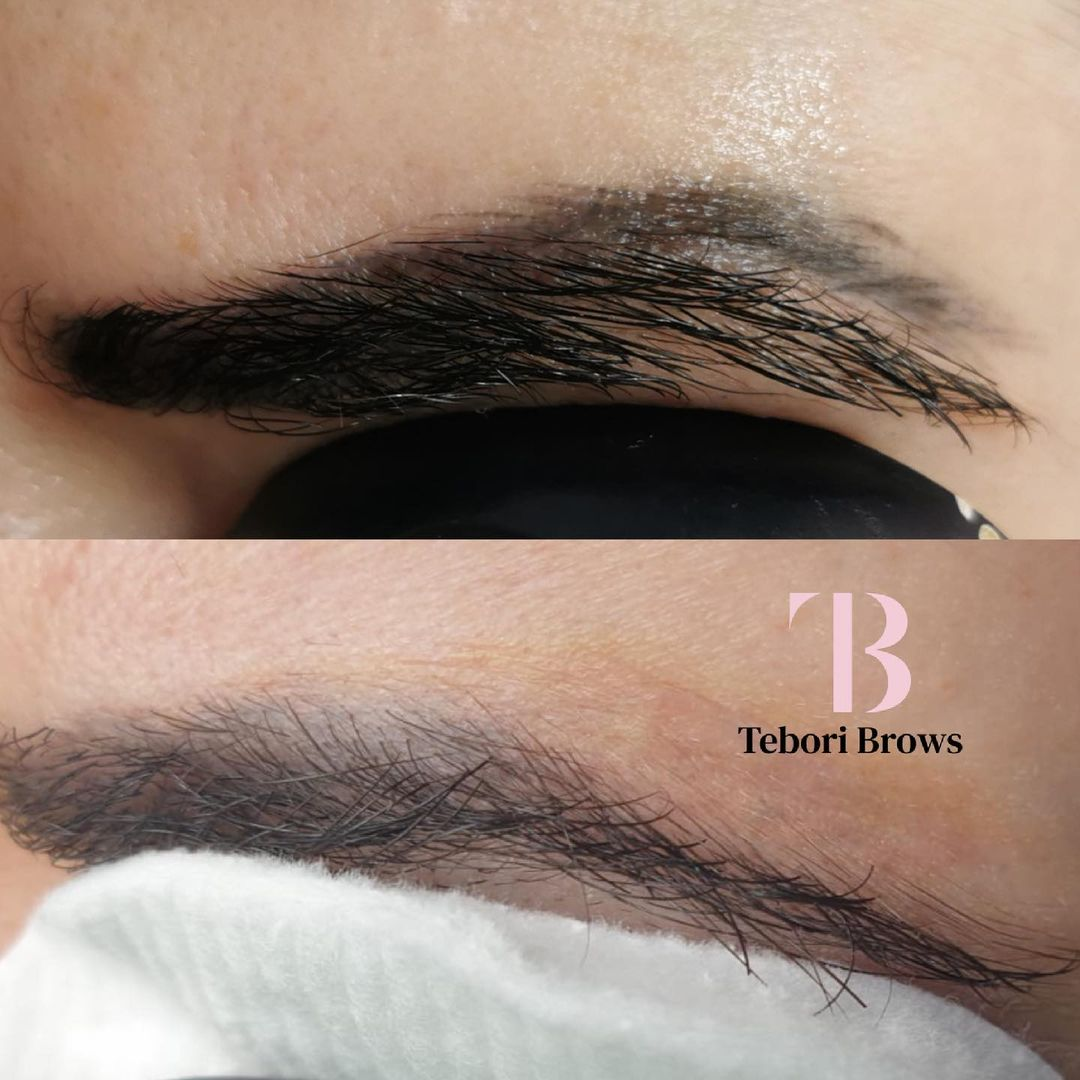 eliminar micropigmentacion de cejas